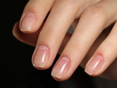 Stan paznokci wiele mówi o zdrowiu. Kiedy trzeba wybrać się do lekarza?