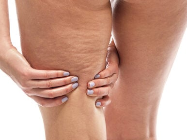 Dieta w walce z cellulitem. O czym pamiętać, a co wykluczyć?