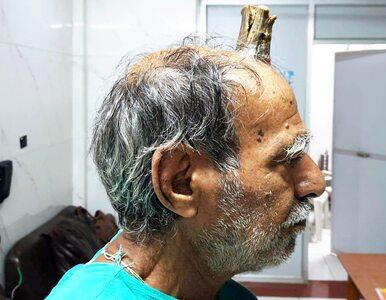 Mężczyźnie urósł na głowie róg. Żył z nim pięć lat