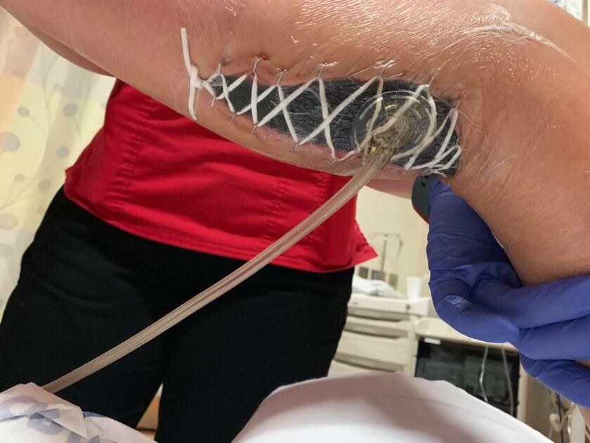 12-latka zaatakowana przez groźną infekcję